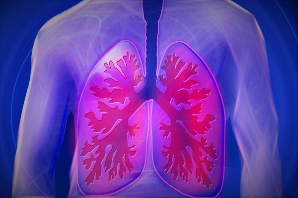 upper body, lung, copd